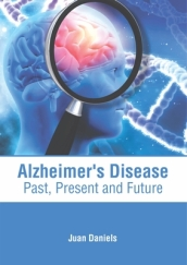 Alzheimer s Disease: Past, Present and Future