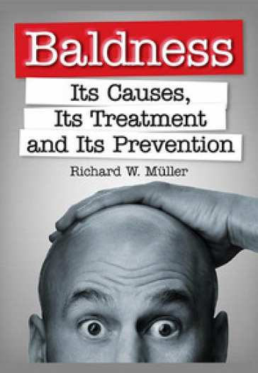 Baldness. Its causes, its treatment and its prevention - Richard W. Muller |