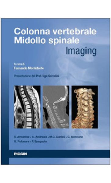 Colonna vertebrale. Midollo spinale. Imaging - F. Monteforte | Rochesterscifianimecon.com