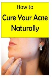 How to Cure Your Acne Naturally