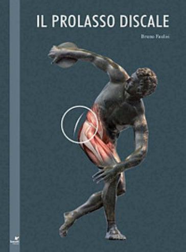 Il prolasso discale - Bruno Faulisi | Rochesterscifianimecon.com