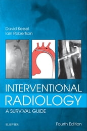 Interventional Radiology: A Survival Guide E-Book