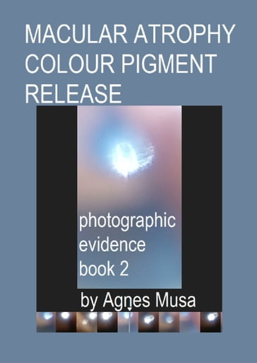 Macular Atrophy Colour Pigment Release, Photographic Evidence Book 2