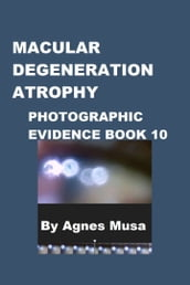 Macular Degeneration Atrophy, Photographic Evidence Book 10