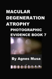 Macular Degeneration Atrophy, Photographic Evidence Book 7