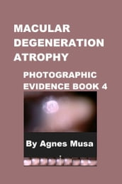 Macular Degeneration Atrophy, Photographic Evidence Book 4