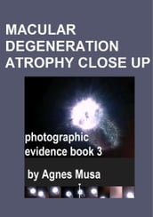 Macular Degeneration Atrophy Close Up, Photographic Evidence Book 3