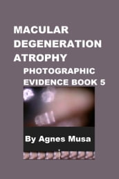 Macular Degeneration Atrophy, Photographic Evidence Book 5