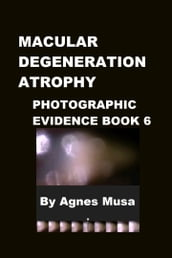Macular Degeneration Atrophy, Photographic Evidence Book 6