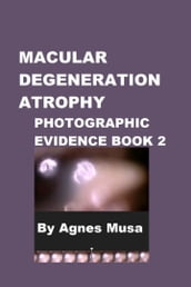 Macular Degeneration Atrophy, Photographic Evidence Book 2