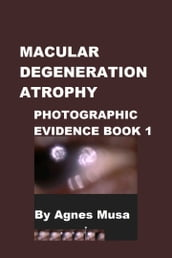 Macular Degeneration Atrophy, Photographic Evidence Book 1