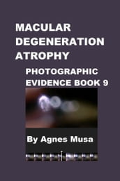 Macular Degeneration Atrophy, Photographic Evidence Book 9