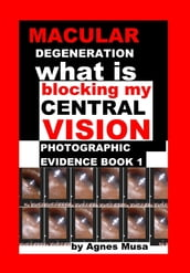 Macular Degeneration, What Is Blocking My Central Vision, Photographic Evidence Book 1