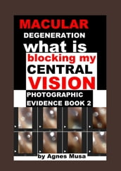 Macular Degeneration, What Is Blocking My Central Vision, Photographic Evidence Book 2