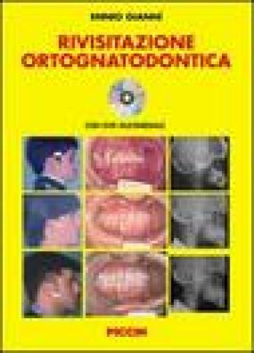 Rivisitazione ortognatodontica. Con DVD - Ennio Giannì   Rochesterscifianimecon.com
